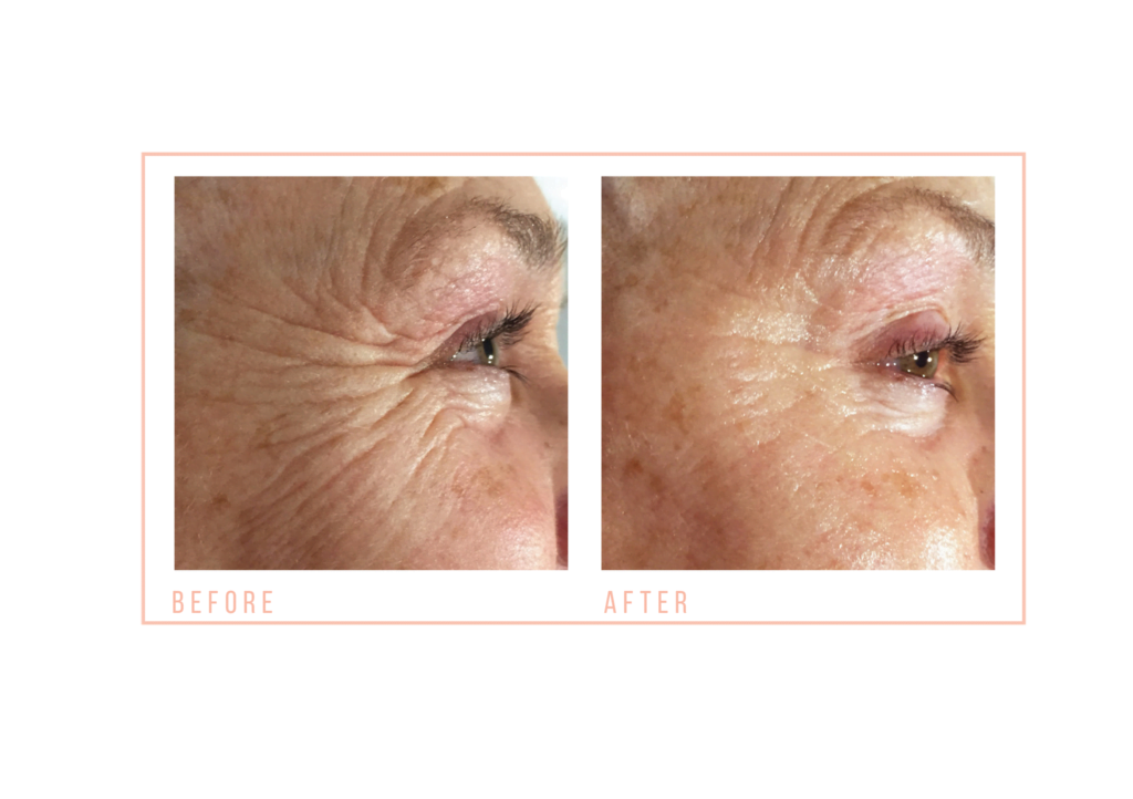 CACI Eye Treatments Before and After