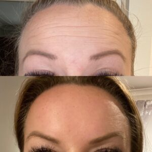 Injectable Treatments Before and After