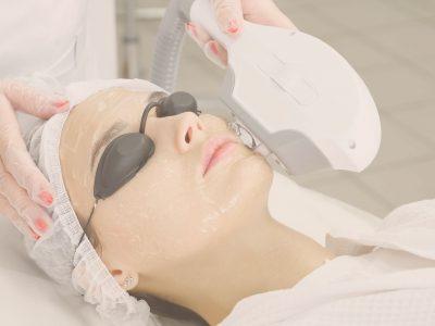 IPL-Facial-Treatments1
